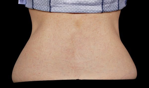 After Treatment Back Fat