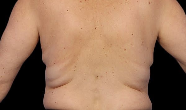 back fat Before Treatment