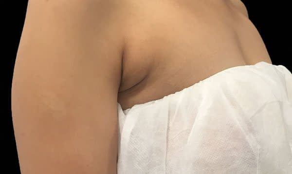 Before Treatment Breast