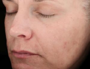 After-Skinmedica Peels