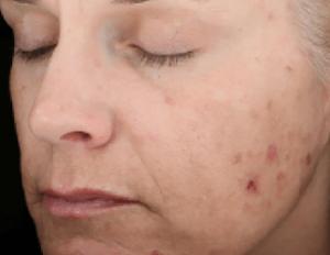Skinmedica Peels