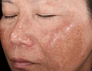 Befor - Skinmedica Peels