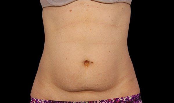 Before Treatment abdomen one
