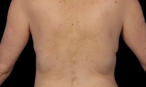 back fat After Treatment