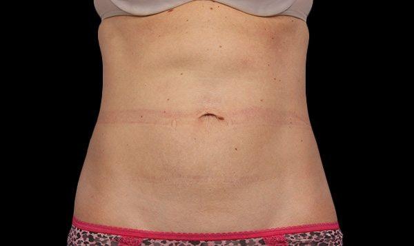 After Treatment abdomen